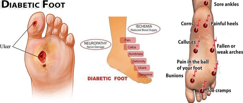 Diabetic Foot Treatment Caribbean Orthopaedic