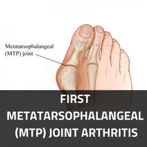 First Metatarsophalangeal (MTP) Joint Arthritis