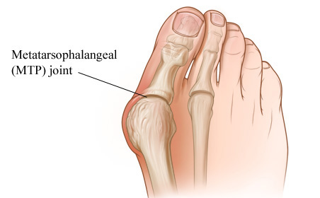 metatarsopharyngealis arthrosis